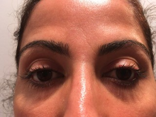 Eyelash Lift in Boston Before Picture