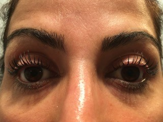 Eyelash Lift in Boston After Picture